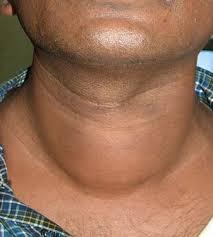 quel effet sur la santé pour une hypotyroide